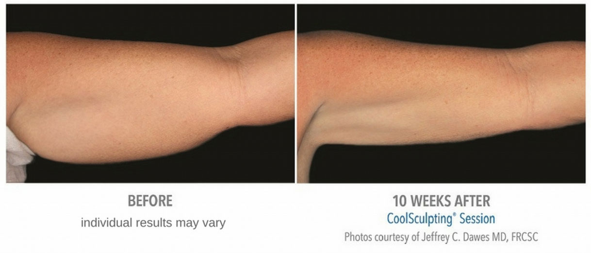 CoolSculpting arm treatment before and after