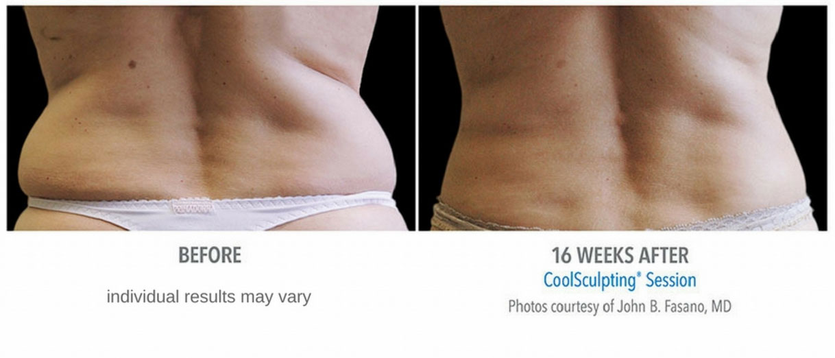 CoolSculpting flank treatment before and after