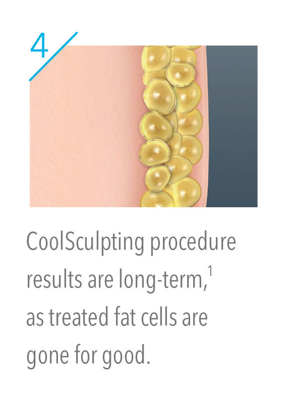 CoolSculpting fat cells are gone for good