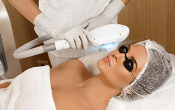 Laser skin treatment skin tightening