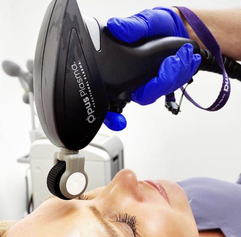 Opus Plasma handpiece treatment